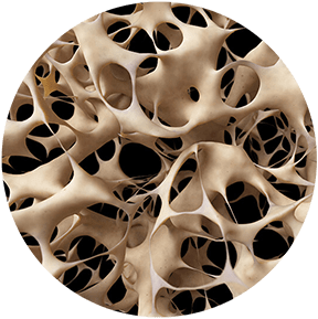 Whole Body Vibration - OSTEOPOROSIS