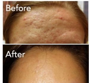 Forehead before after-min