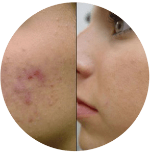 Minimize Stretch Marks, Acne Scars, And Large Pores-microneedling treatment