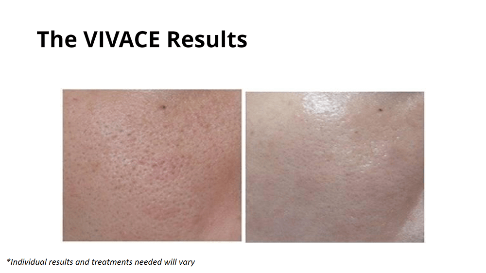 Microneedling Treatment - VIVACE RF | Muse MidSpa